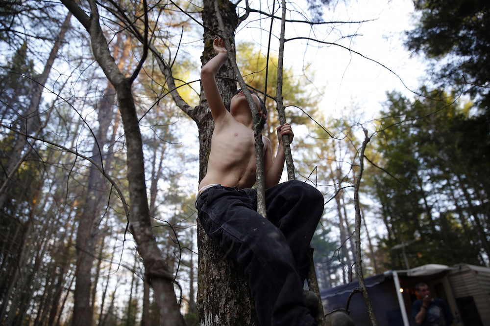 Oxford, Maine –– Strider reached up to grab high on a sapling revealing a scar that snaked its way up his stomach and a dimple that marked the place where a feeding tube had once been as he climbed a tree in the first of several campgrounds that would come to be home throughout the course of the summer. Credit: Jessica Rinaldi, Boston Globe.